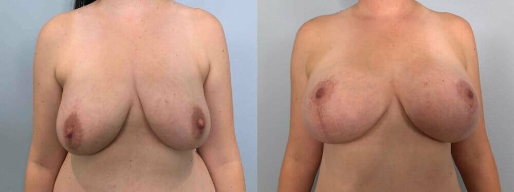 Breast Lift With Implants Gallery - Patient 48813449 - Image 1