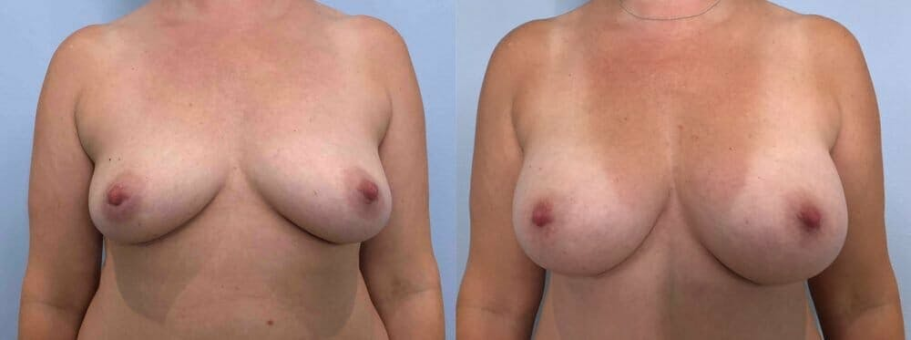 Breast Augmentation Gallery - Patient 48813451 - Image 1