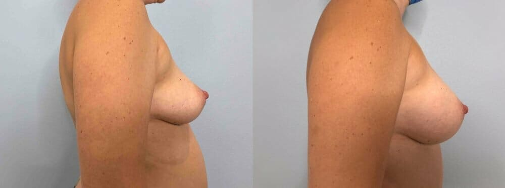 Breast Augmentation Gallery - Patient 48813451 - Image 3