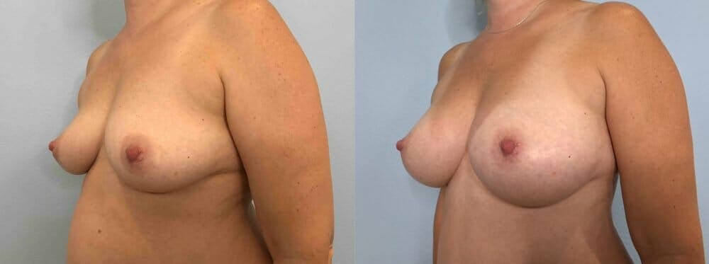 Breast Augmentation Gallery - Patient 48813451 - Image 4