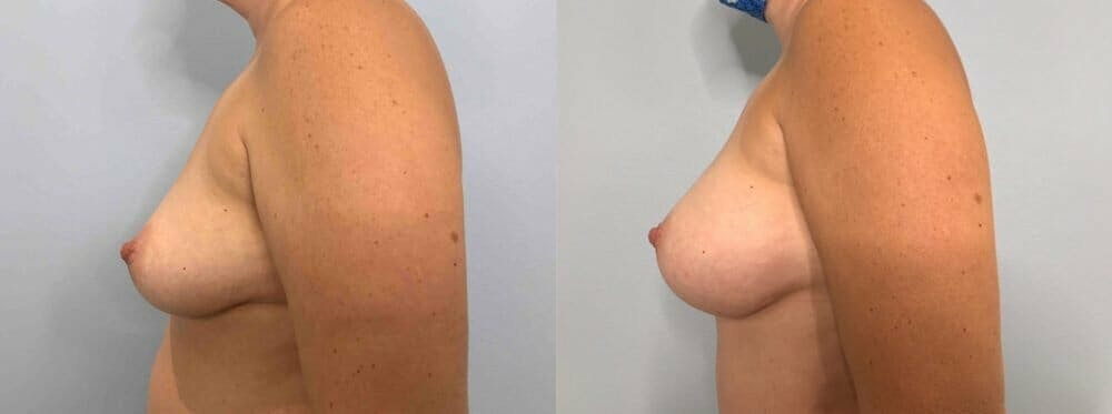 Breast Augmentation Gallery - Patient 48813451 - Image 5