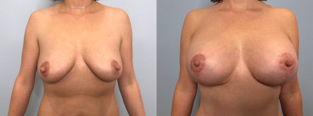 Breast Lift With Implants Gallery - Patient 48813457 - Image 1