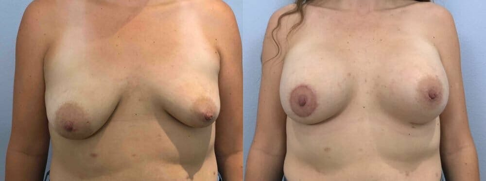 Breast Augmentation Gallery - Patient 48813459 - Image 1