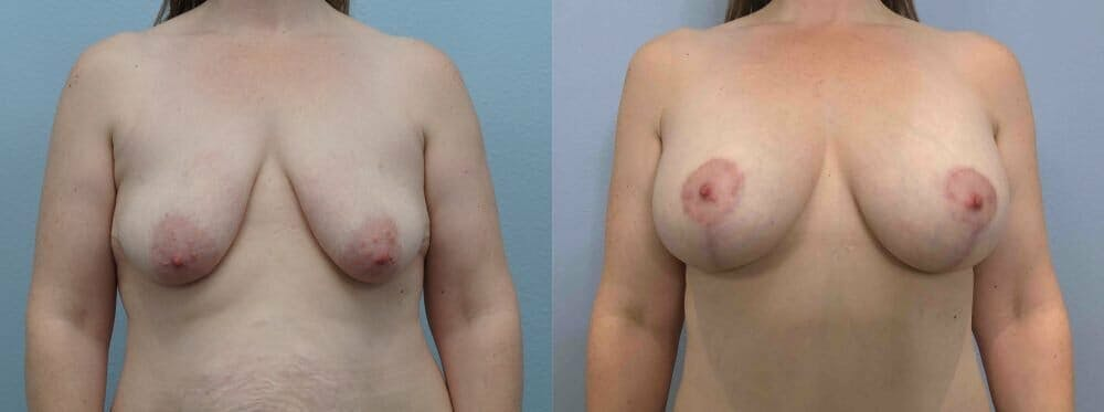 Breast Lift With Implants Gallery - Patient 48813464 - Image 1
