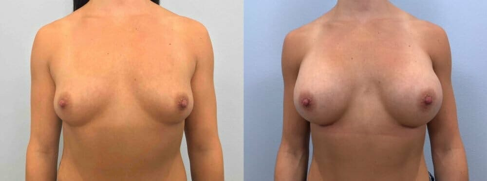 Breast Augmentation Gallery - Patient 48813465 - Image 1