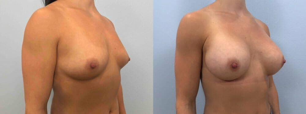 Breast Augmentation Gallery - Patient 48813465 - Image 2