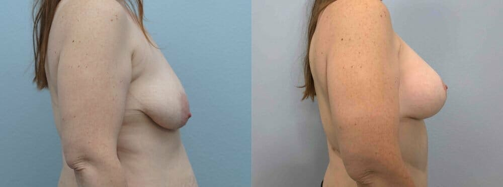 Breast Lift With Implants Gallery - Patient 48813464 - Image 3