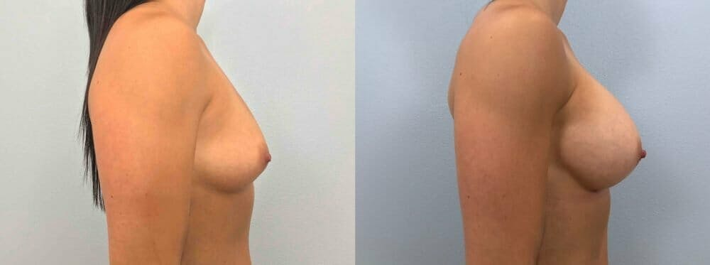 Breast Augmentation Gallery - Patient 48813465 - Image 3