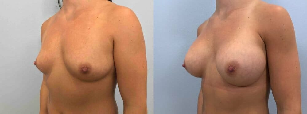 Breast Augmentation Gallery - Patient 48813465 - Image 4