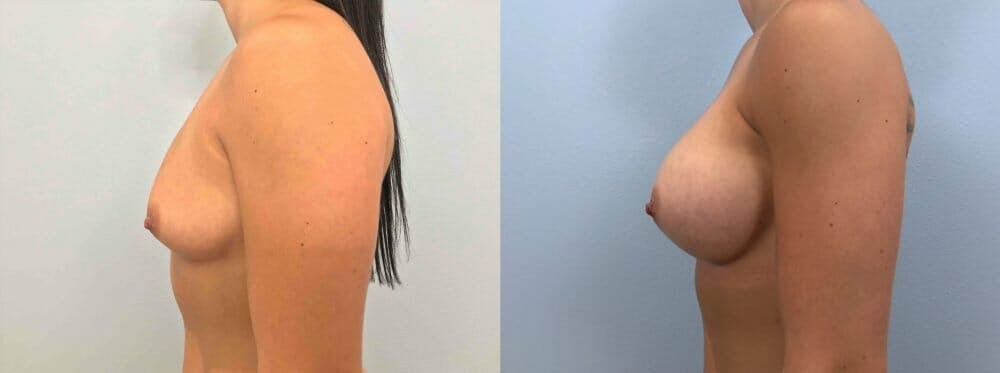 Breast Augmentation Gallery - Patient 48813465 - Image 5