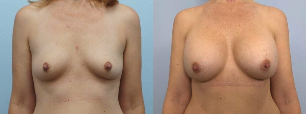 Breast Augmentation Gallery - Patient 48813472 - Image 1