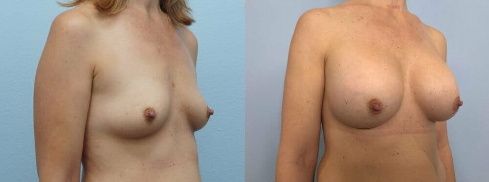 Breast Augmentation Gallery - Patient 48813472 - Image 2