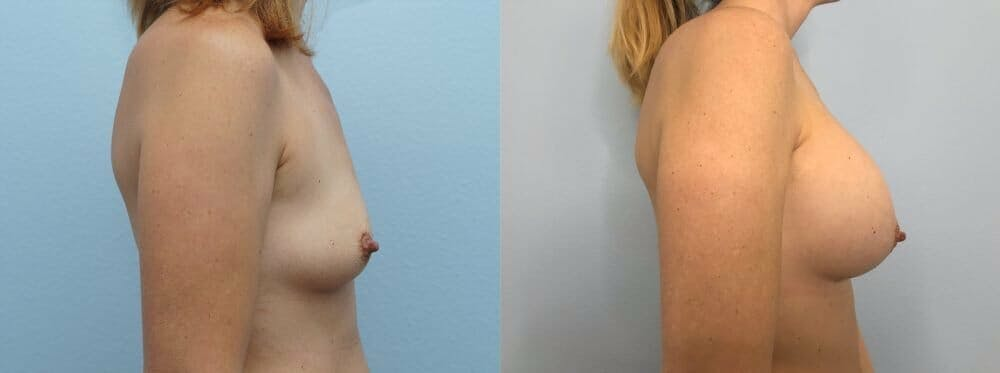 Breast Augmentation Gallery - Patient 48813472 - Image 3