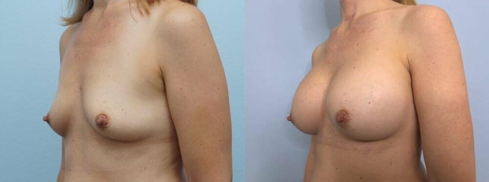 Breast Augmentation Gallery - Patient 48813472 - Image 4