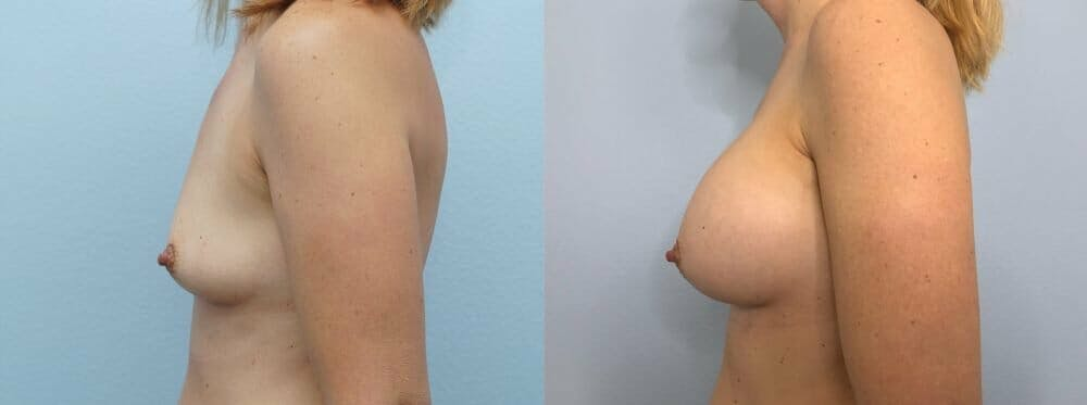 Breast Augmentation Gallery - Patient 48813472 - Image 5