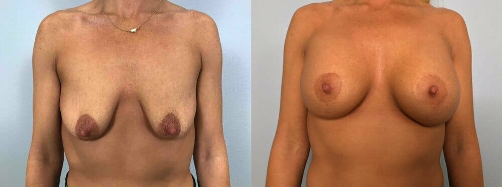 Breast Lift With Implants Gallery - Patient 48813477 - Image 1