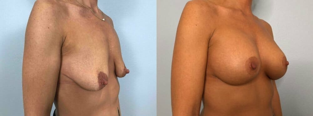 Breast Lift With Implants Gallery - Patient 48813477 - Image 2