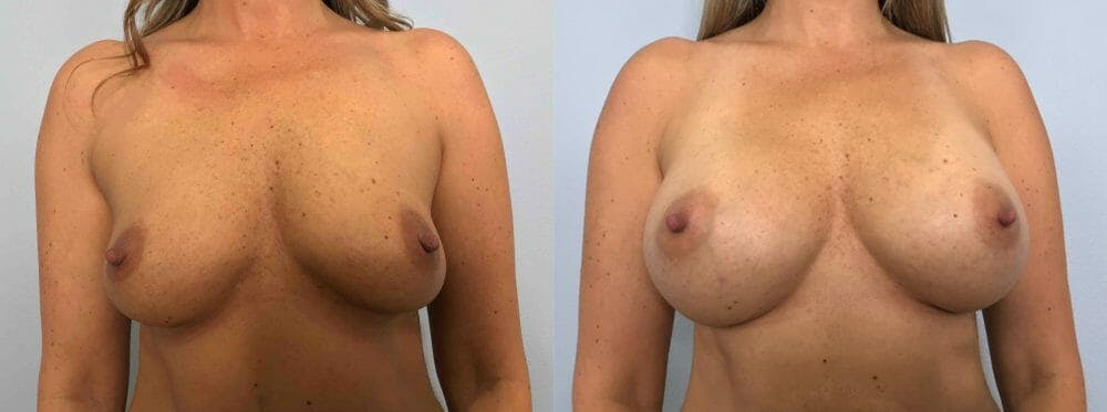Breast Augmentation Gallery - Patient 48813479 - Image 1