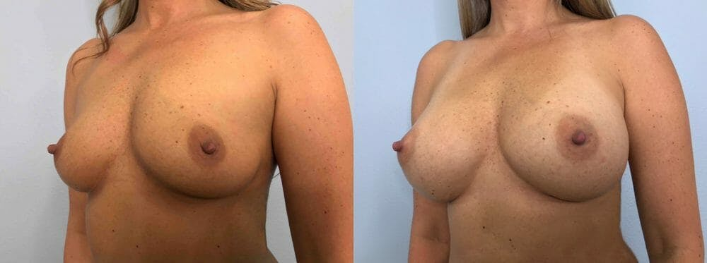 Breast Augmentation Gallery - Patient 48813479 - Image 2