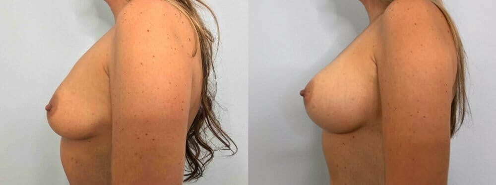 Breast Augmentation Gallery - Patient 48813479 - Image 3