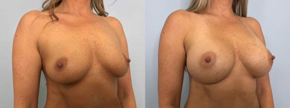 Breast Augmentation Gallery - Patient 48813479 - Image 4
