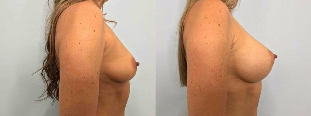 Breast Augmentation Gallery - Patient 48813479 - Image 5