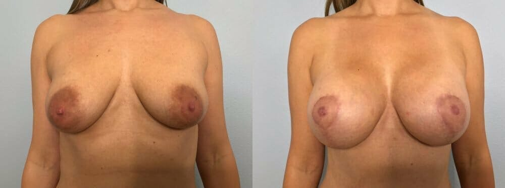 Breast Lift With Implants Gallery - Patient 48813483 - Image 1