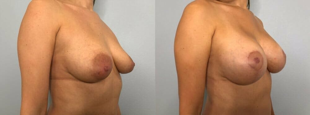 Breast Lift With Implants Gallery - Patient 48813483 - Image 2