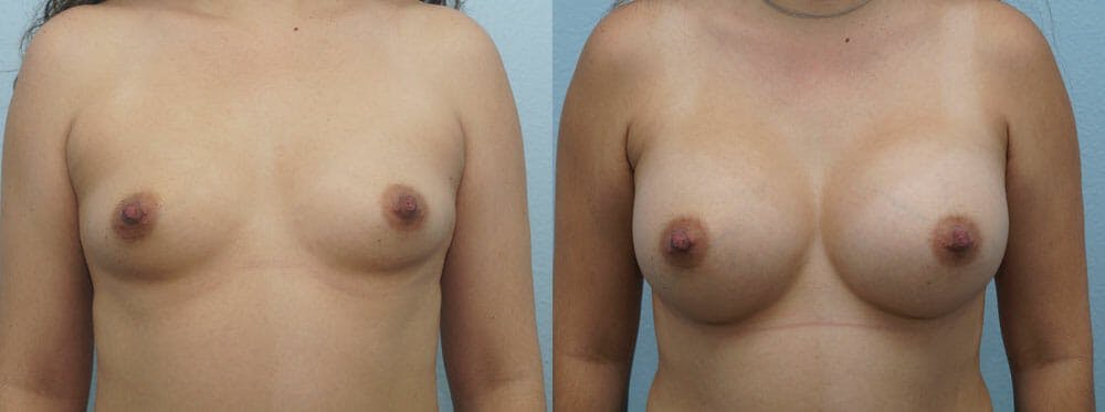 Breast Augmentation Gallery - Patient 48813487 - Image 1