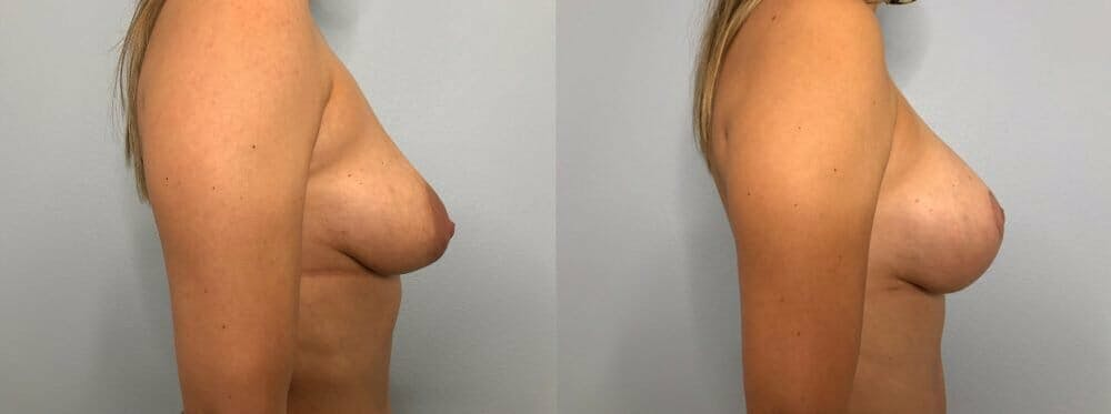 Breast Lift With Implants Gallery - Patient 48813483 - Image 3