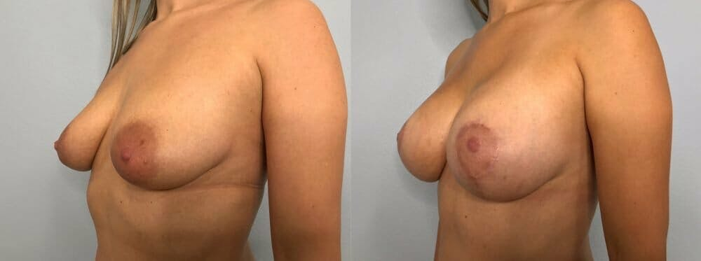 Breast Lift With Implants Gallery - Patient 48813483 - Image 4
