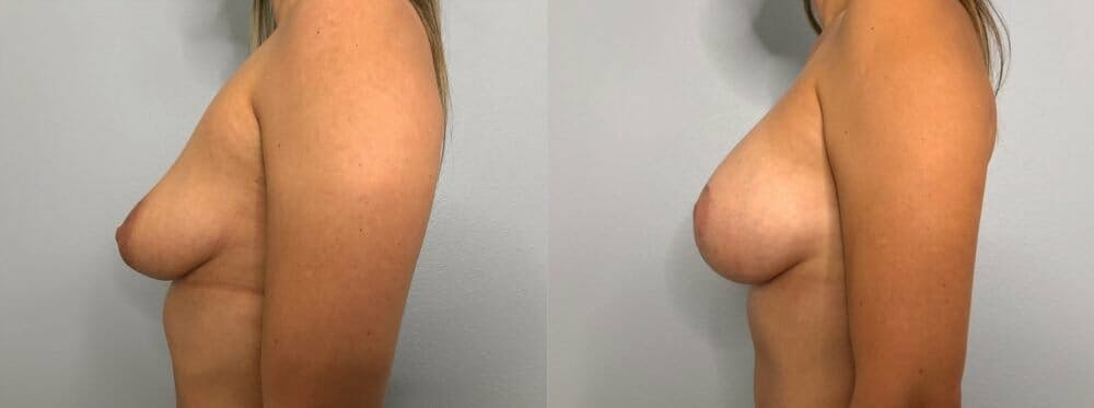 Breast Lift With Implants Gallery - Patient 48813483 - Image 5