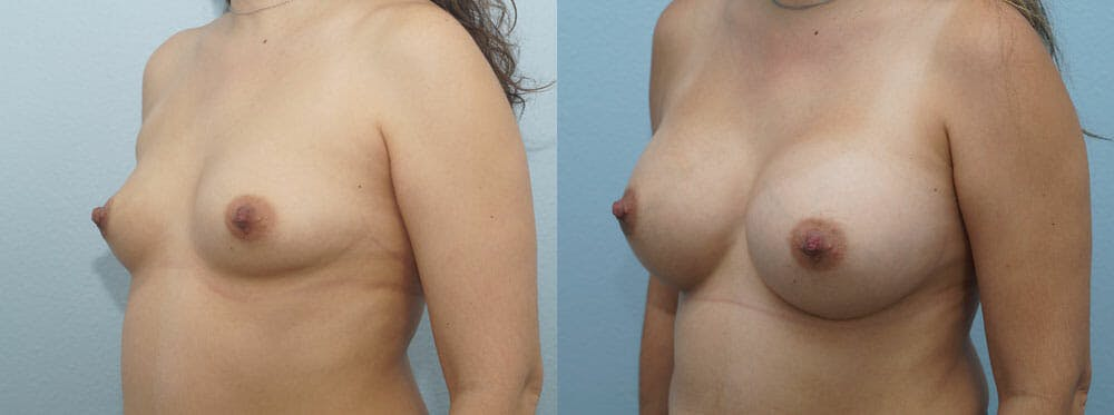 Breast Augmentation Gallery - Patient 48813487 - Image 2