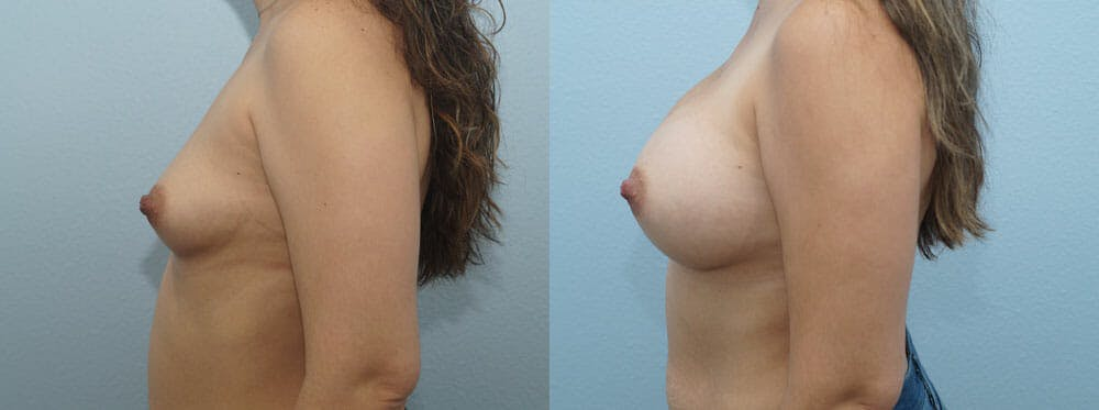 Breast Augmentation Gallery - Patient 48813487 - Image 3
