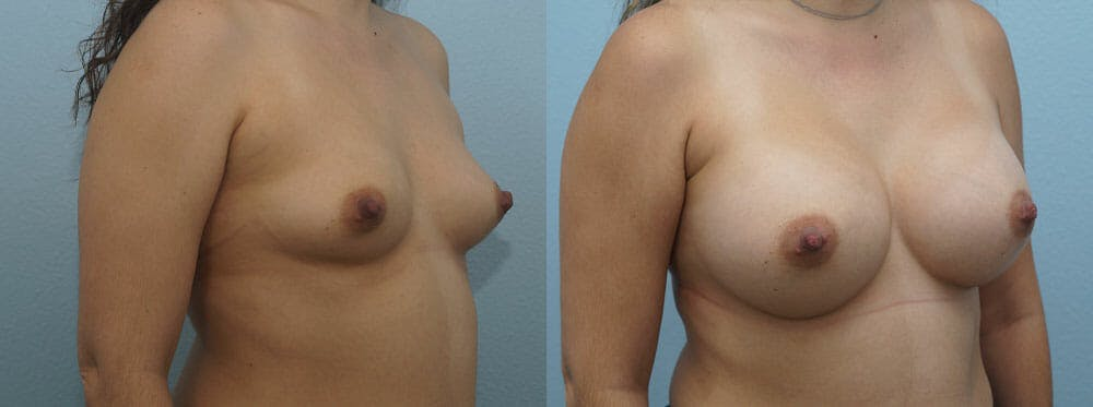 Breast Augmentation Gallery - Patient 48813487 - Image 4