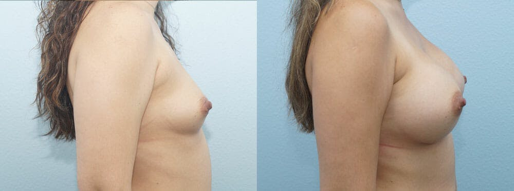 Breast Augmentation Gallery - Patient 48813487 - Image 5