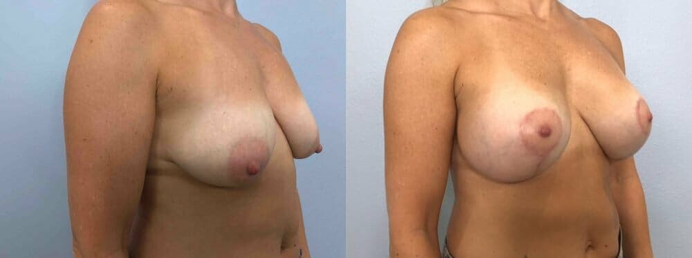 Breast Lift With Implants Gallery - Patient 48813492 - Image 2