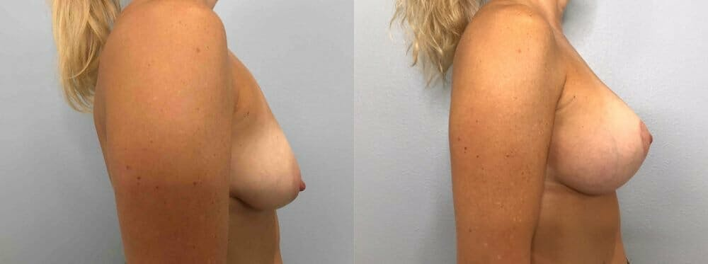 Breast Lift With Implants Gallery - Patient 48813492 - Image 3