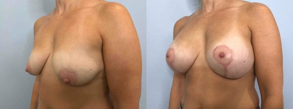 Breast Lift With Implants Gallery - Patient 48813492 - Image 4