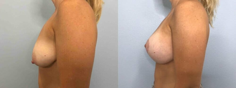 Breast Lift With Implants Gallery - Patient 48813492 - Image 5
