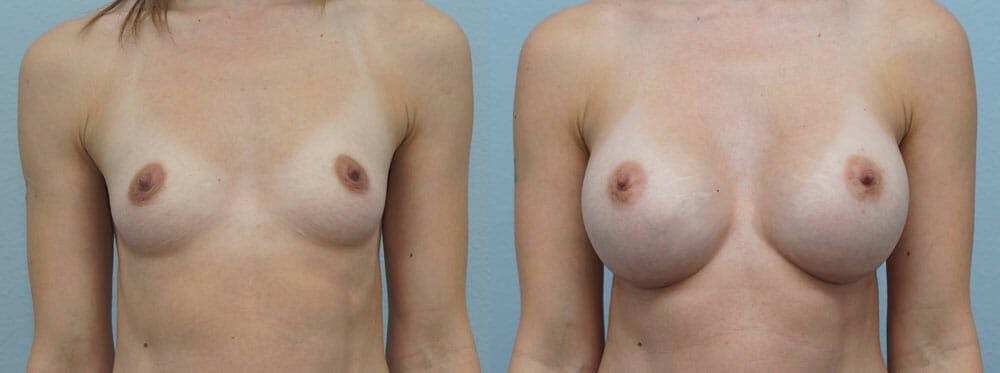 Breast Augmentation Gallery - Patient 48813501 - Image 1