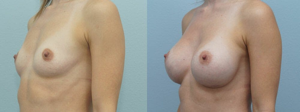 Breast Augmentation Gallery - Patient 48813501 - Image 2