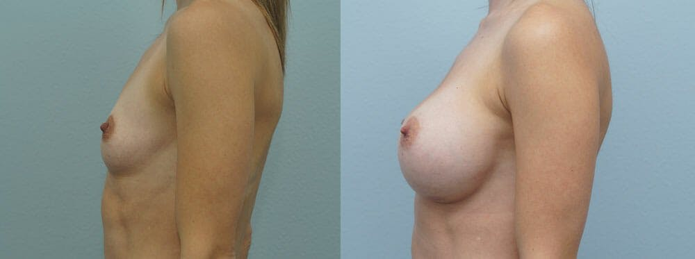 Breast Augmentation Gallery - Patient 48813501 - Image 3