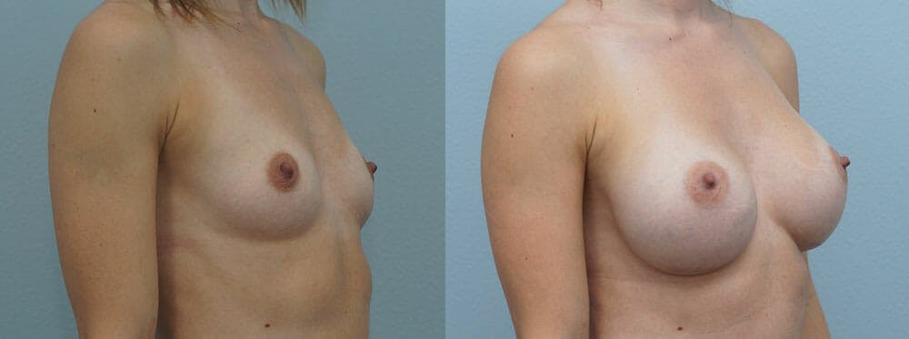 Breast Augmentation Gallery - Patient 48813501 - Image 4