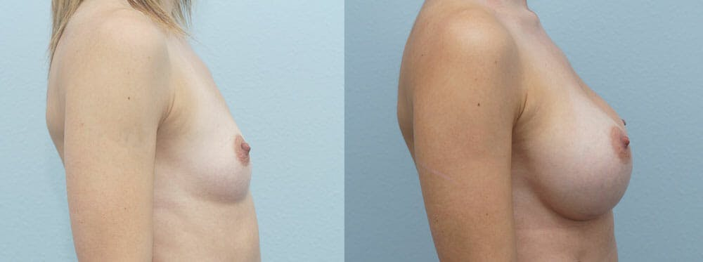 Breast Augmentation Gallery - Patient 48813501 - Image 5