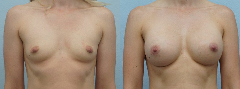 Breast Augmentation Gallery - Patient 48813514 - Image 1