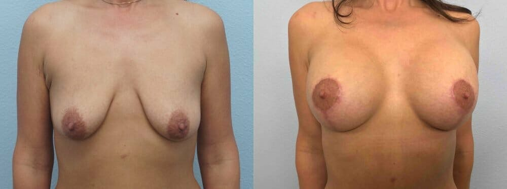 Breast Lift With Implants Gallery - Patient 48813518 - Image 1