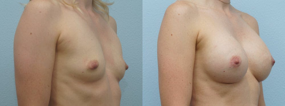 Breast Augmentation Gallery - Patient 48813514 - Image 2