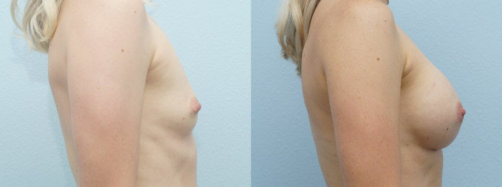 Breast Augmentation Gallery - Patient 48813514 - Image 3