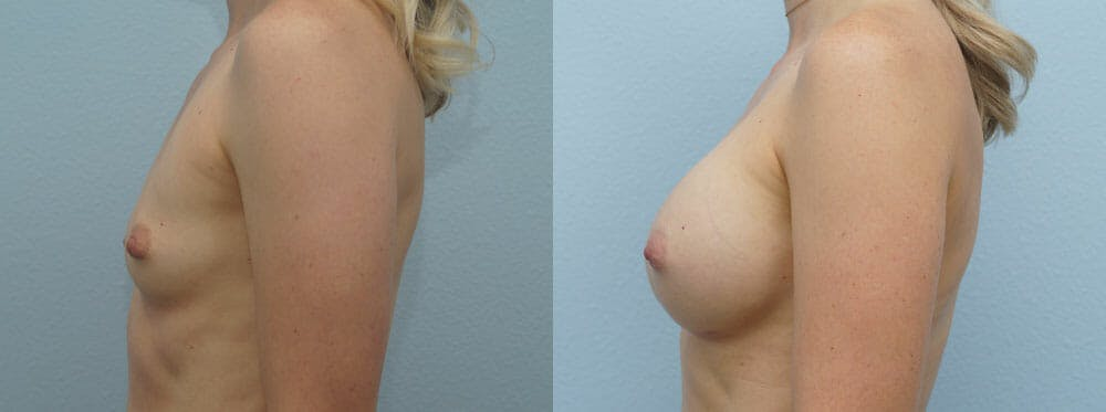 Breast Augmentation Gallery - Patient 48813514 - Image 5